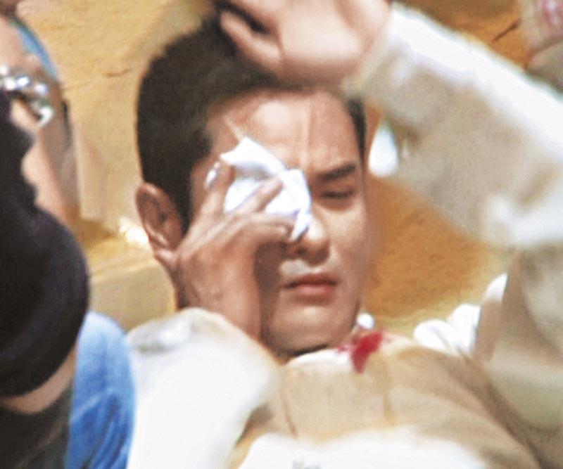 致盲一击 2012年以天价拍《叶问》时被一名新武师打中右眼,眼部红肿,眼肚破裂流血,翌日回港求医,缝针后表层伤口愈合,但眼球受重击却导致视力受损。