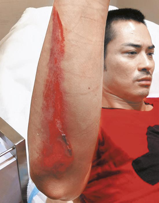 拳王没料到 11年5月 拍无线《拳王》也受伤。